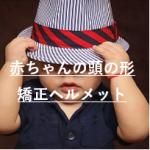赤ちゃんの頭の形矯正ヘルメットの値段と注文方法!口コミも紹介